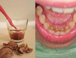 Миниатюра к статье Как избавиться от зубного камня при помощи 1 простого средства