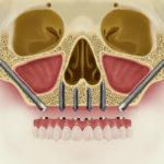 Скуловая имплантация: цены, отзывы об установке скуловых имплантов